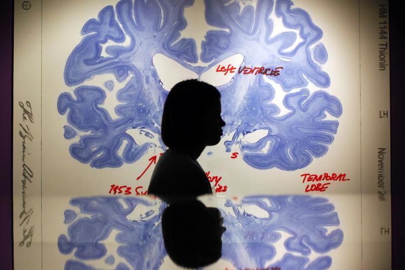 Photo Via: www.newsweek.com, brain scan documentary, brain's, emotional health observations.